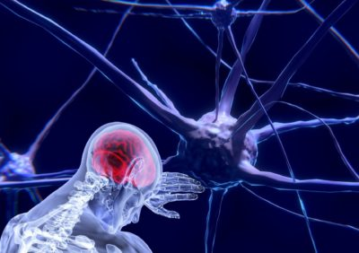 Neurorehabilitacja - rehabilitacja neurologiczna